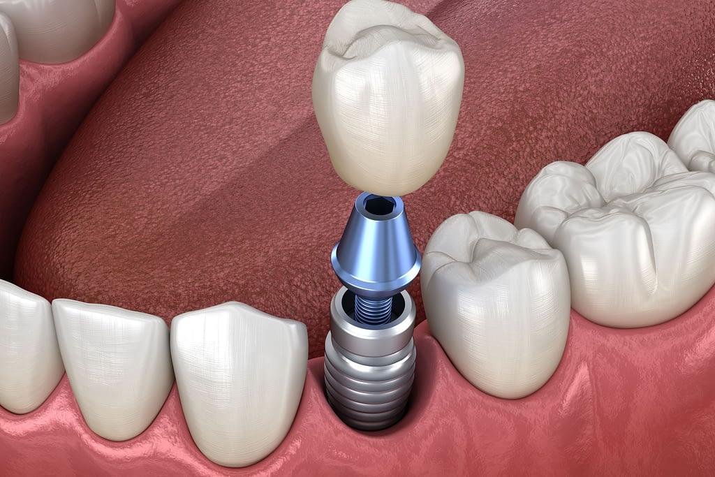 dental implant model Cedarhurst, NY