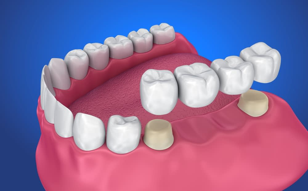Traditional Dental Crowns