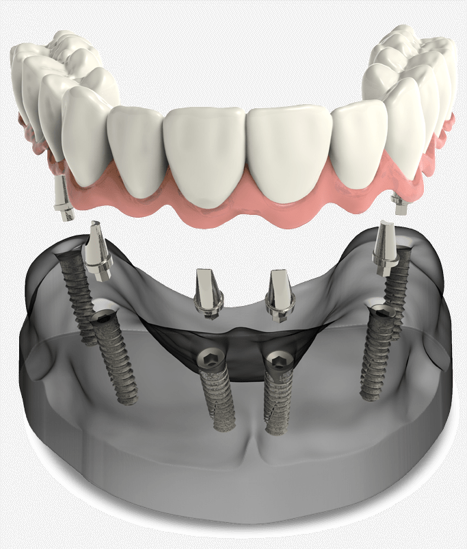 full arch dental implants model Cedarhurst, NY