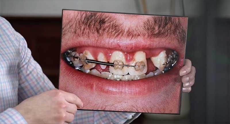 full mouth reconstruction before Cedarhurst, NY