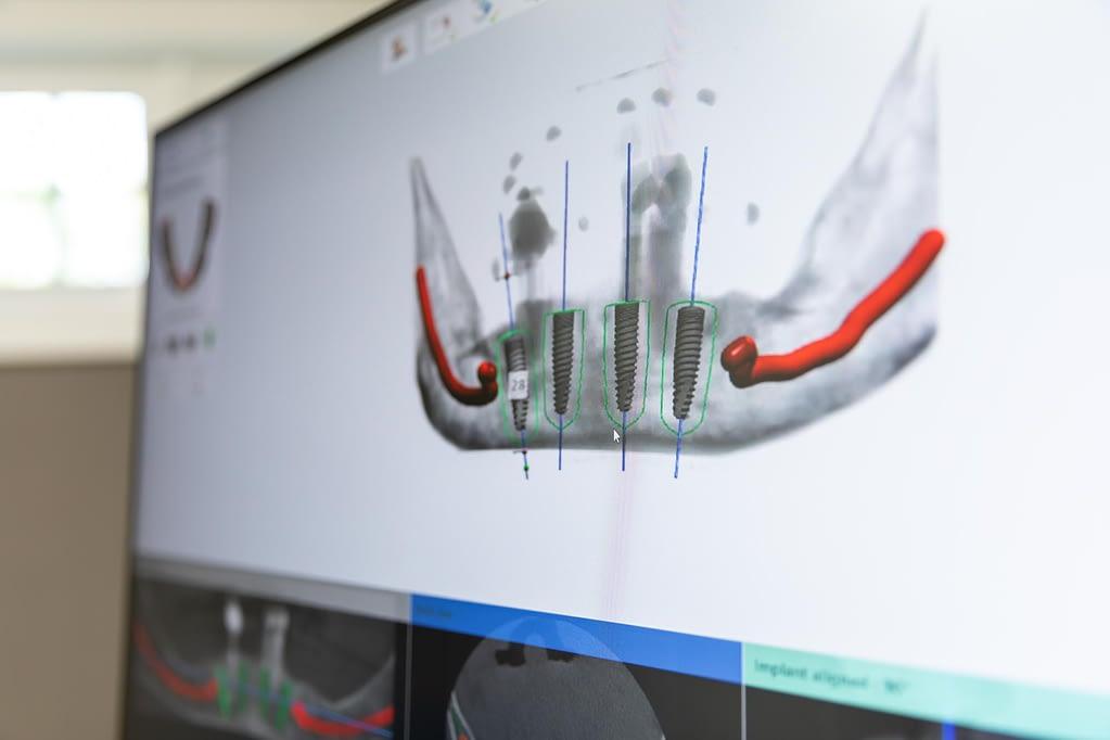 guided implant surgery technology Cedarhurst, NY